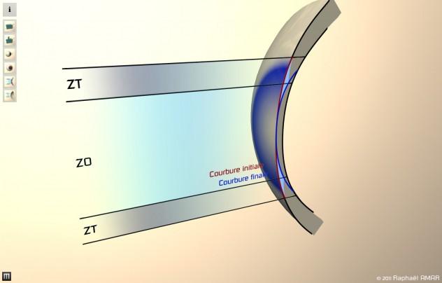 schéma courbures lasik et PKR