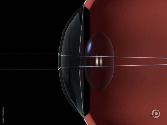 vue en coupe d'un oeil montrant la cornée, l'iris, le cristalin et les rayons lumineux déviés