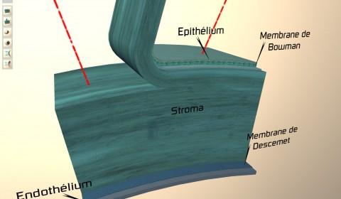 coupe de la cornée comparant les chirurgies lasik et PKR