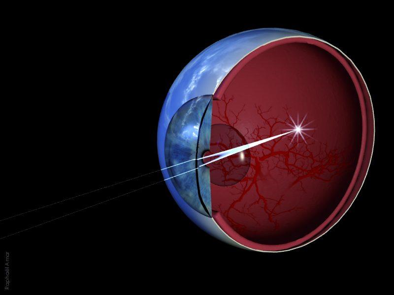 vue en coupe d'un oeil avec focale des rayons lumineux sur la retine