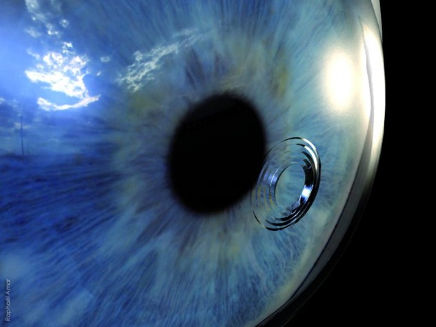 gros plan sur l'iris / cornée montrant les incisions de la chirurgie intracor